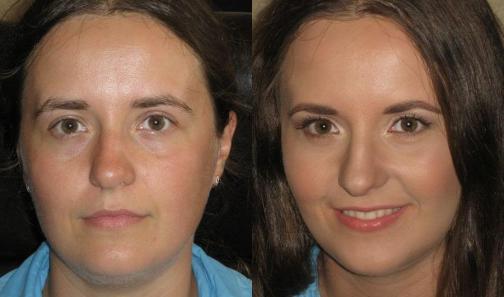 как лицо визуально уменьшить